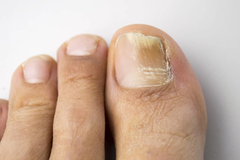 Details to check for in Nail Fungus Consumer Review