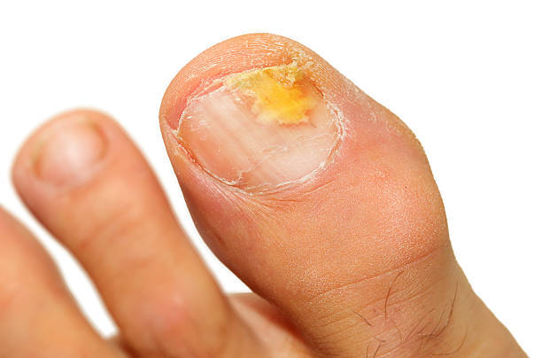 Tips for Nail Fungus Treatment